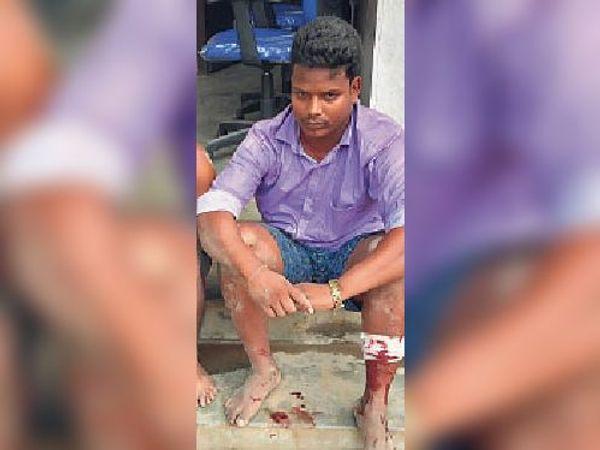 मानसी पीएचसी स्थित आइसोलेशन सेंटर(ऊपर) व (नीचे)मुठभेड़ में घायल अपराधी जो चकमा देकर हो गया फरार। - Dainik Bhaskar