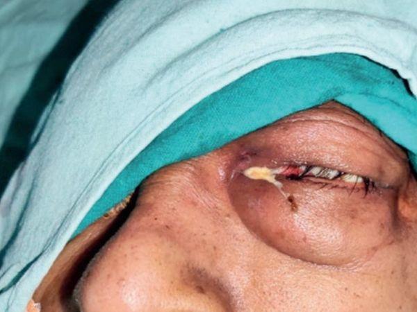 एम्स के डायरेक्टर डॉ. सरमन सिंह ने बताया घर में स्टेराॅयड लेकर काेराेना से जीतने वालाें काे इसका खतरा ज्यादा। - Dainik Bhaskar
