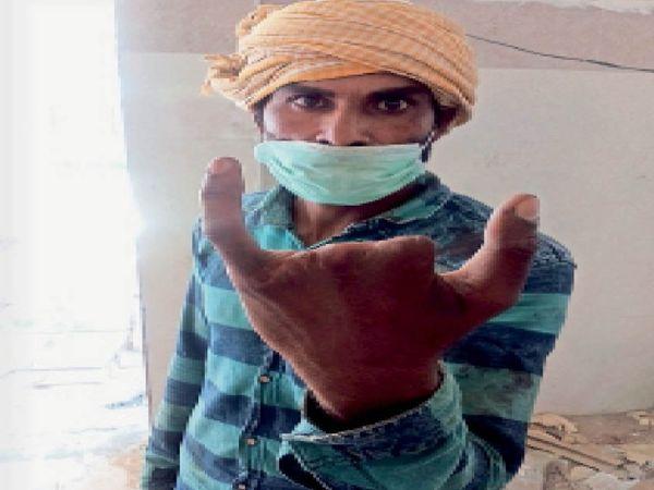 काटी गई अंगुलियों को दिखाते डेहा कॉलोनी निवासी अनिल।