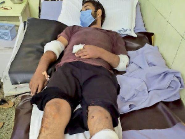 पानीपत. मारपीट में घायल साेनू अस्पताल में भर्ती। - Dainik Bhaskar