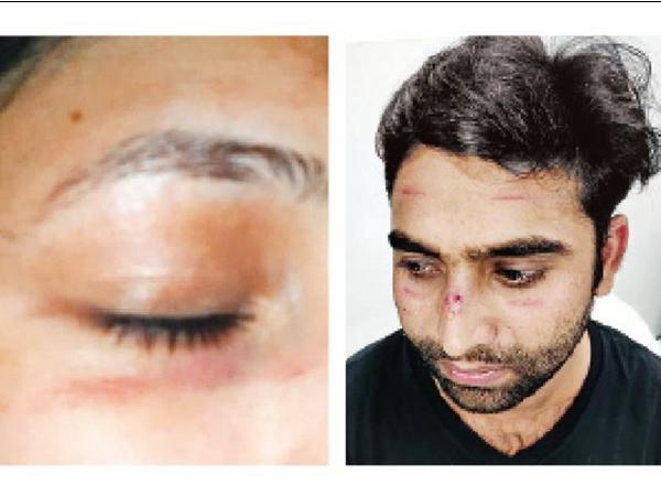 चेहरे पर दर्द के निशान - Dainik Bhaskar