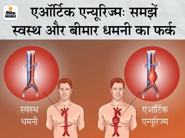 आमतौर पर एऑर्टिक एन्यूरिज्म का पता लगाने के लिए अल्ट्रासाउंड किया जाता है। फूली हुई धमनियां इस बीमारी के होने का संकेत देती हैं।