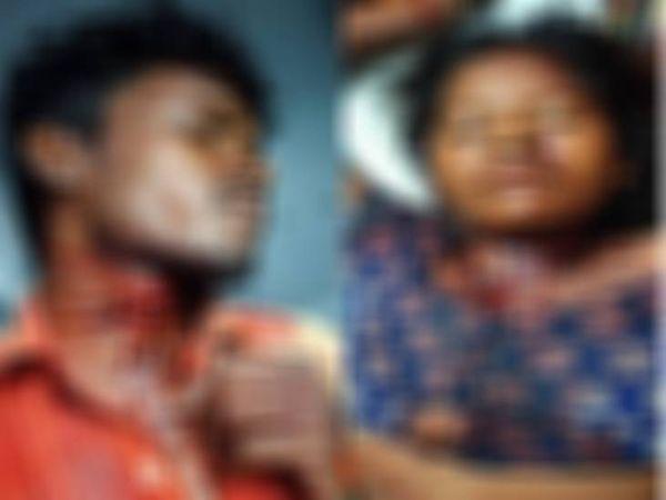 चाकू के हमले से गले में लगे चोंट के निशान। - Dainik Bhaskar