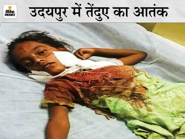 5 साल की हसीना का उदयपुर के एमबी अस्पताल में जारी है उपचार। - Dainik Bhaskar