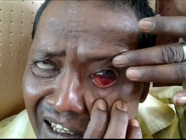 पुलिस के मारने से युवक की आंखें फूट गईं। - Dainik Bhaskar