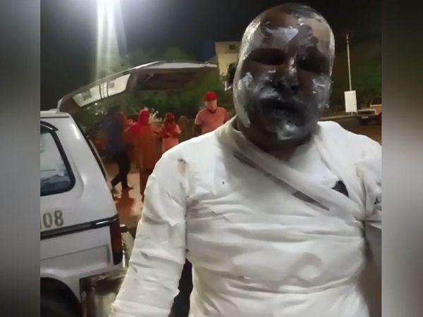 बहादुरगढ़ के नजदीकी गांव कसार में आग लगाए जाने के बाद गंभीर रूप से घायल गांव का मुकेश। - Dainik Bhaskar