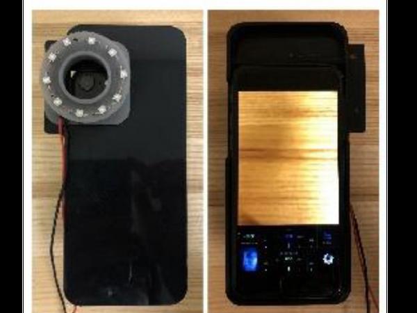 बैक्टीरिया की जांच के लिए 3डी रिंग वाले मोबाइल कैमरे में 10 एलईडी लाइट लगाई गईं। - Dainik Bhaskar