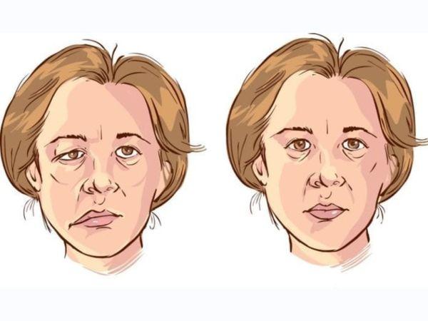 बेल्स पॉल्सी मांसपेशियों में कमजोरी और पैरालिसिस (लकवा) से जुड़ी बीमारी है। इसका असर मरीज के चेहरे पर दिखता है। चेहरे की मांसपेशियों कमजोर हो जाती हैं। आधा चेहरा लटका हुआ नजर आता है। - Dainik Bhaskar