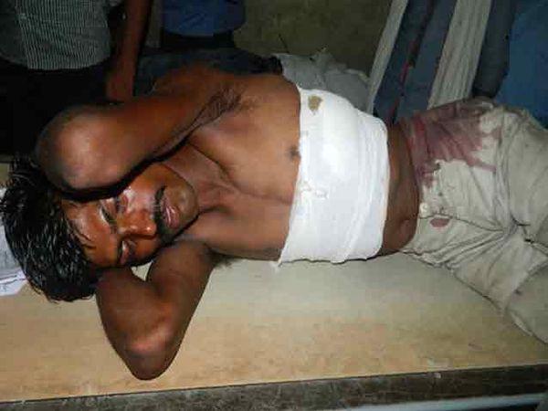 जखमी रंजीतला उपचारांसाठी हॉस्पिटलमध्ये दाखल करण्यात आले - Divya Marathi