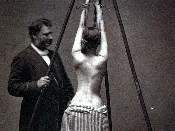 या छायाचित्रात अमेरिकेचे प्रसिद्ध डॉक्टर लेविस अलबर्ट सायरे (1820-1900) एका रुग्णाचा उपचार करतानाचे छायाचित्र आहे. 19 व्या शतकातील प्रमुख ऑर्थोपेडिक सर्जनमध्ये त्यांची गणना होते. - Divya Marathi