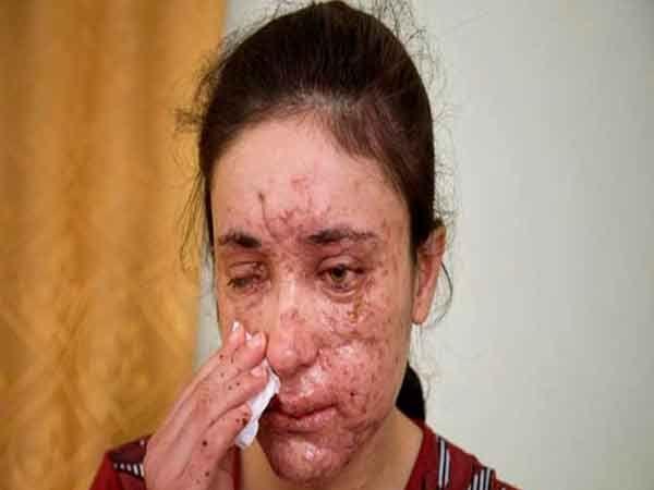 आयएसआयएसच्या नियंत्रणातून पळून आलेल्या 18 वर्षांच्या लामिया अजी बशर (छायाचित्रात).  आयएसच्या कैदेतून पळून जाताना खाणीच्या स्फोटात तिला आपला डोळा गमवावा लागला व चेह-याची अशी स्थिती झाली. - Divya Marathi