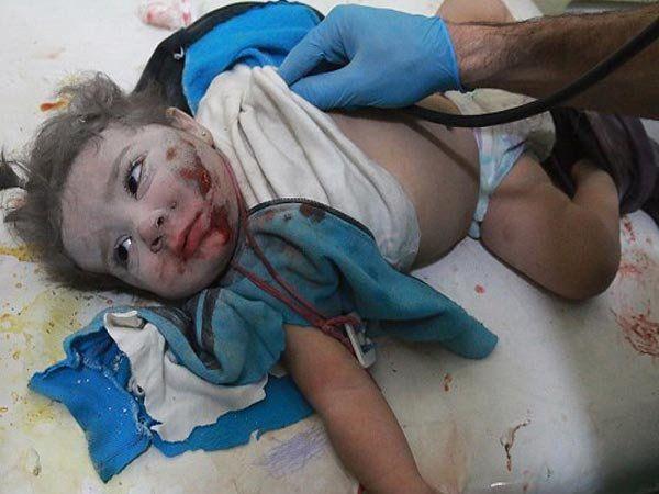 सीरियातील अलेप्पो शहरातील फरदौस बाजारात रशियाने हल्ला केला, तेव्हा तेथे महिला व मुलांचा समावेश होता जे जखमी झाले आहेत व अनेक जण मृत्यूमुखी पडले आहेत. - Divya Marathi