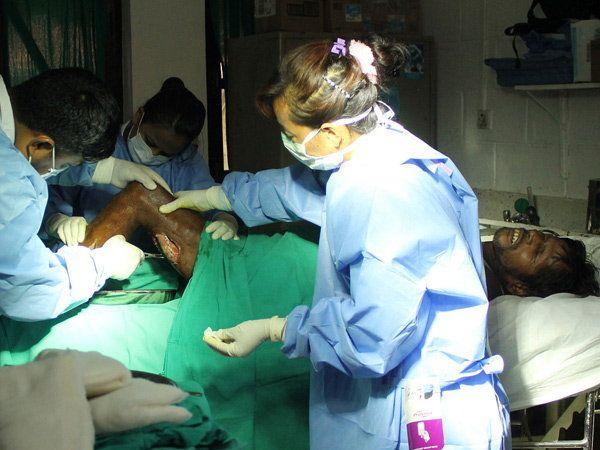 कुष्ठरुग्णावर ऑपरेशन करताना डॉक्टर - Divya Marathi