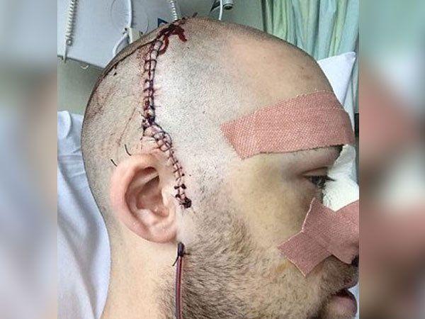 सर्जरीनंतर एलिक्सचे डोकं असे दिसत आहे. - Divya Marathi