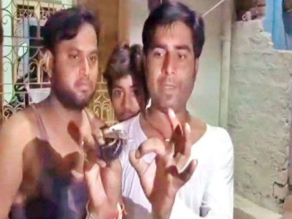 मुरैनामध्ये एका महिलेला तिच्या केसांत हा किडा आढळला. - Divya Marathi