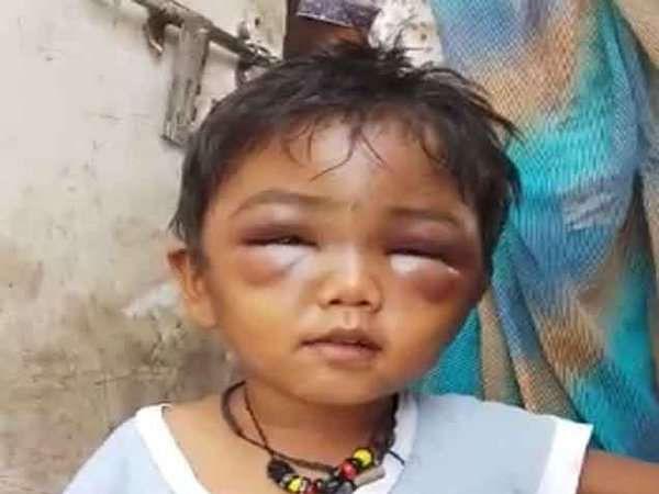 पिंपळे गुरवमध्ये शिकवणीच्या बाईंनी 3 वर्षाच्या चिमुरड्याला लाकडी पट्टीने जबर मारहाण केल्याची घटना समोर आली होती. - Divya Marathi