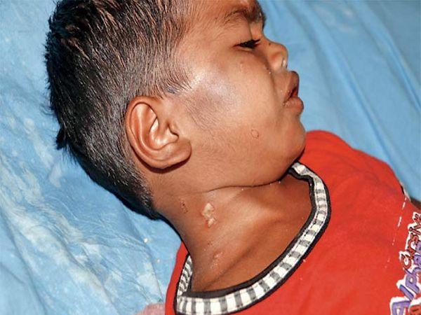जिल्हा रुग्णालयात उपचार घेत असलेल्या संस्कारच्या मानेवरही चटक्यांच्या जखमा अाहेत. - Divya Marathi