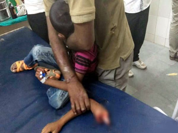 चिमुकल्याचा हाता खांद्यापासून तुटून पडला होता. - Divya Marathi