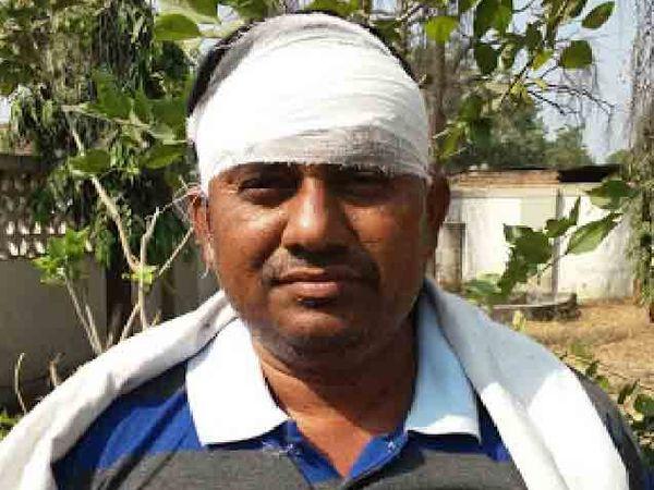 दरोड्याच्या घटनेत जखमी झालेले व्यवस्थापक. - Divya Marathi