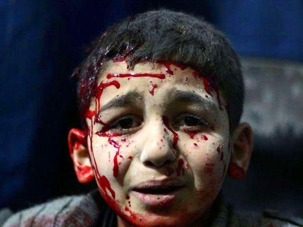 सीरियातील युद्धाचा चेहरा यापेक्षा काही दुसरा नाही. - Divya Marathi