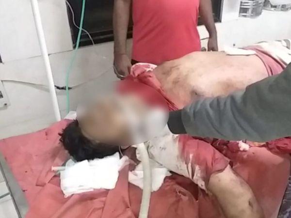 મૃતદેહ હોસ્પિટલમાં ખસેડાયો. - Divya Bhaskar