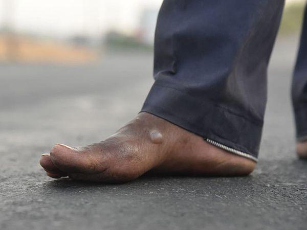 ઉઘાડા પગે ચાલવાથી ઘણા મજૂરોના પગમાં ફોલ્લાં પડી ગયા છે
