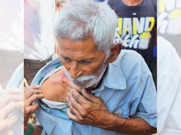 રામજશ ઠાકુરદીન મિશ્રાએ વતન જવા માટે છેલ્લા છ દિવસમાં એટલી બધી રઝળપાટ કરી છે કે સામાન ઊંચકીને તેમના બંને ખભા છોલાઈ ગયા છે. - Divya Bhaskar