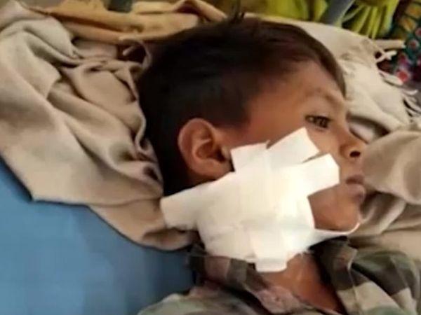 બાળક ગોધરા સિવિલમાં સારવાર લઈ રહ્યો છે - Divya Bhaskar