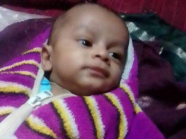 પાંચ મહિનાના નવજાત બાળકની સર્જરી કરવામાં આવી. - Divya Bhaskar