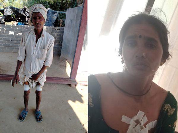દિયોદરના રવેલ જુના ગામે સોમવારે હડકાયા કૂતરાનો ત્રણને લોહી લુહાણ કર્યા હતા. જેને લઈ લોકોમાં ફફડાટ ફેલાયો છે. - Divya Bhaskar
