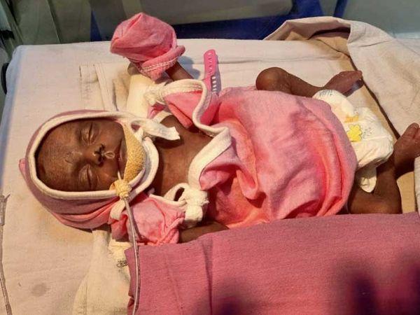 હિંમતનગર સિવિલમાં કાંગારું કેર સારવાર દ્વારા બાળકીને બચાવાઈ - Divya Bhaskar