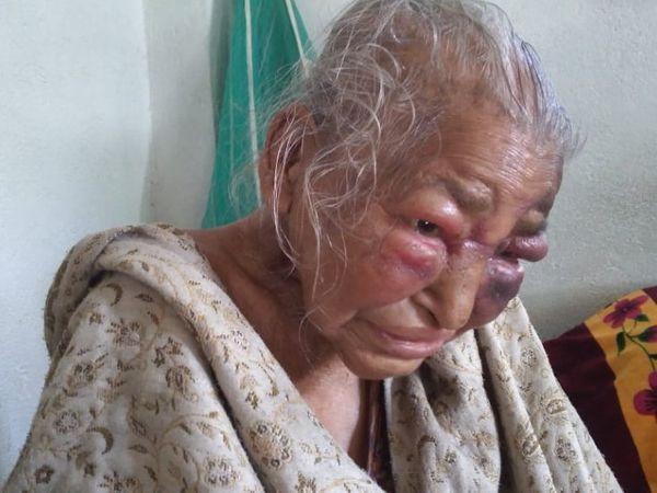 આ તસવીર 28 ફેબ્રુઆરીની છે, હુમલામાં શોવા મજૂમદાર ઘાયલ થયા હતા. તેમણે પોતાના પર થયેલા હુમલા અંગે મીડિયાને જણાવ્યું હતું. - Divya Bhaskar