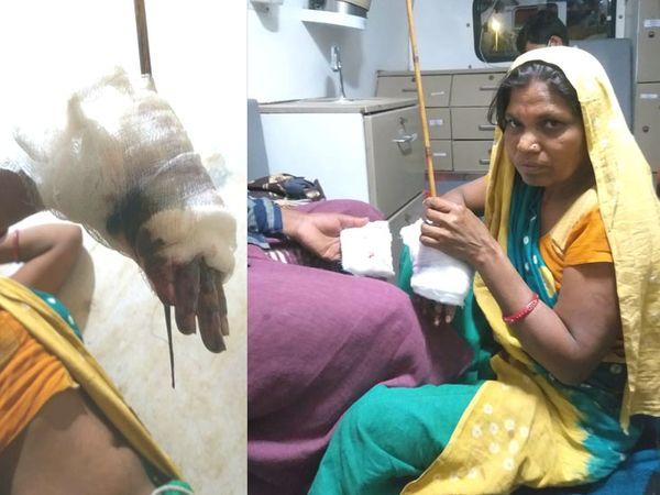 વહેલી સવારે ઘર આંગણે નહાતી મહિલા ઉપર તીરથી હુમલો કરાતા મહિલાની હથેળીની આરપાસ તીર નિકળી ગયું હતું. - Divya Bhaskar
