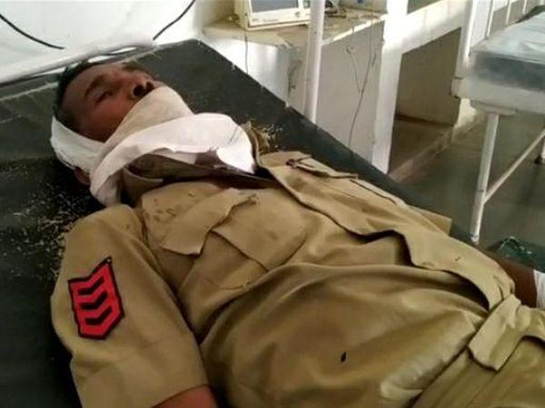 બે પોલીસકર્મીઓને માથામાં, હાથે અને પગે ગંભીર ઇજાઓ - Divya Bhaskar