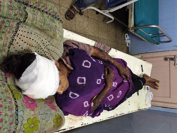 પિતાએ કુહાડી મારતાં ઘાયલ થયેલી પુત્રીને સયાજીમાં ખસેડાઈ હતી. - Divya Bhaskar