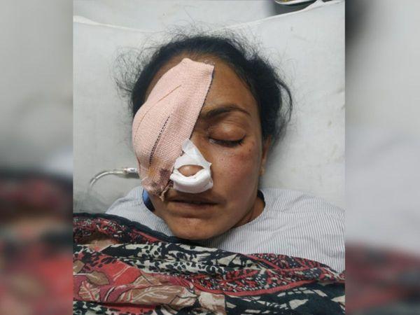 મ્યુકોરમાઇકોસિસના દર્દીની ફાઈલ તસવીર
