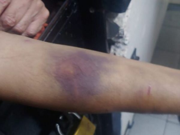 હાથ પર ઈજાનાં નિશાન બતાવતો મેહુલ ચોકસી. તેના વકીલોએ દાવો કર્યો છે કે ચોકસી સાથે મારપીટ કરવામાં આવી છે.