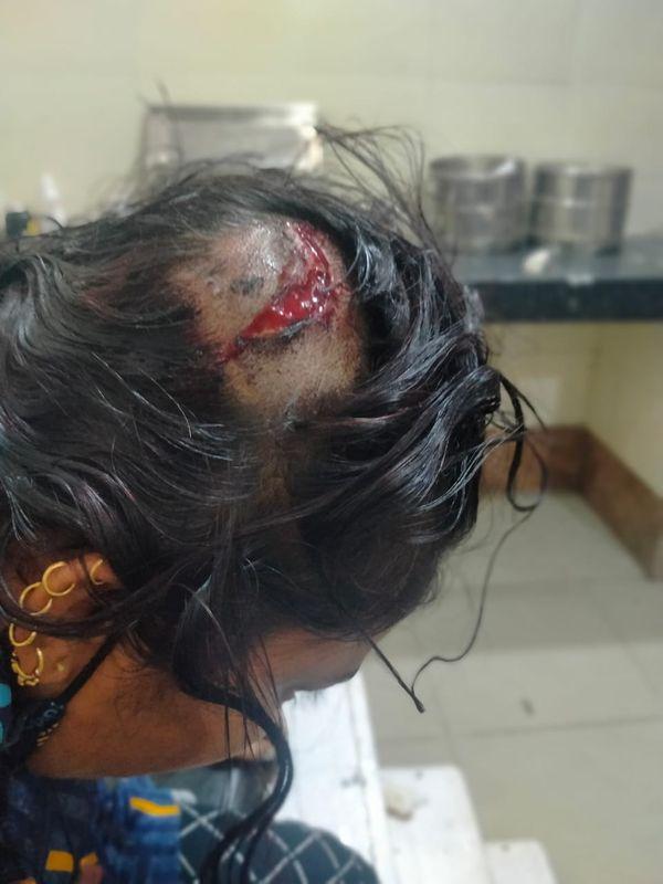दीपा गुर्जर के सिर में लगी चोट