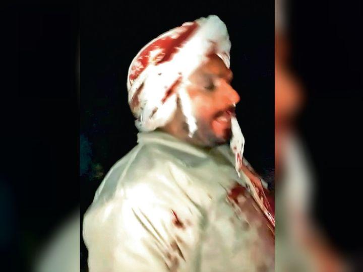 हमले में घायल हुआ पुलिसकर्मी। - Dainik Bhaskar