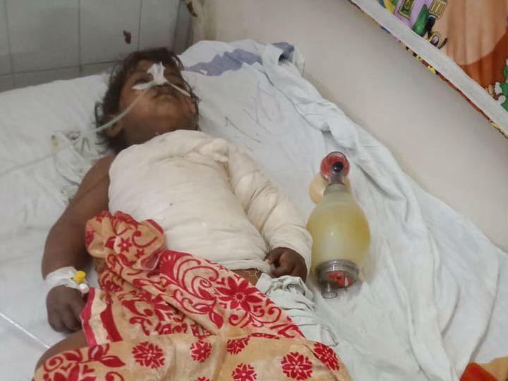 एमवाय अस्पताल में बच्ची का इलाज चल रहा था। - Dainik Bhaskar