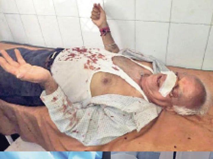 महिला श्रमिकों के हमले में घायल पूर्व विधायक। - Dainik Bhaskar