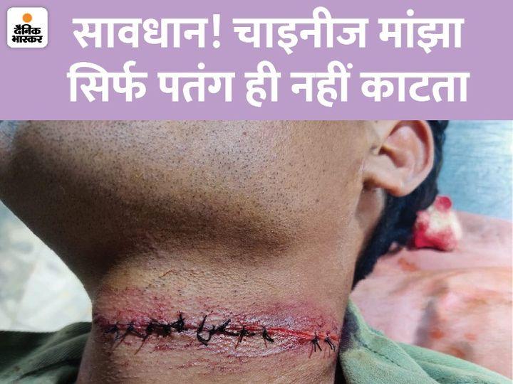 महाकाल दर्शन करने आए राजस्थान केे गोलू का चाइना मांझे से गला कट गया। डॉक्टरों ने 11 टांके लगाए, गोलू की जान बची। - Dainik Bhaskar
