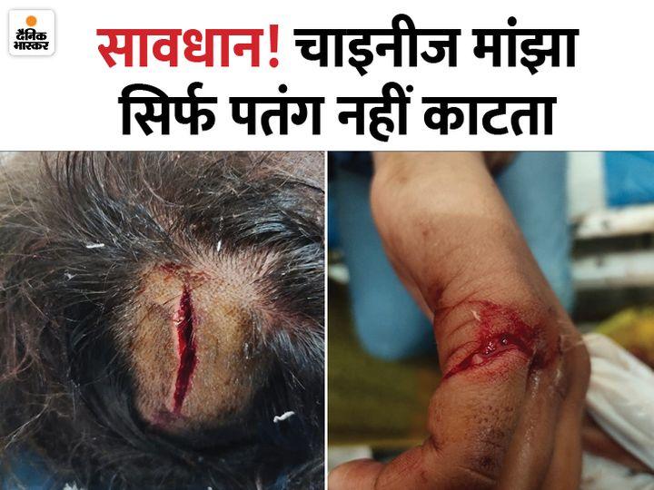 यह दोनों फोटो राजस्थान के सीकर की हैं। एक व्यक्ति का सिर मांझे से कट गया तो दूसरे का हाथ बुरी तरह जख्मी हो गया। - Dainik Bhaskar