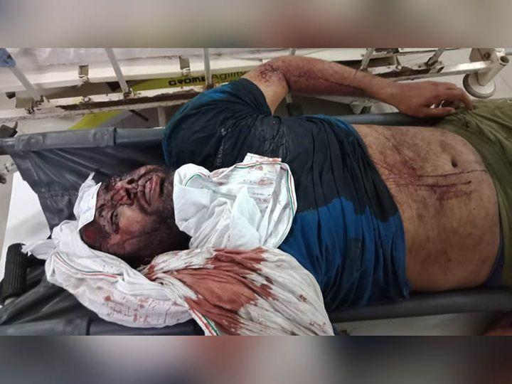 सोनीपत में जिला जेल से सिविल अस्पताल की मोर्चरी में लाई गई कैदी की लाश। - Dainik Bhaskar