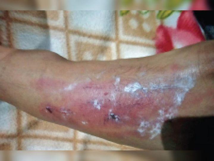 पीड़ित बच्चे की टांग व पांव पर पिटाई से जख्म के निशान। - Dainik Bhaskar