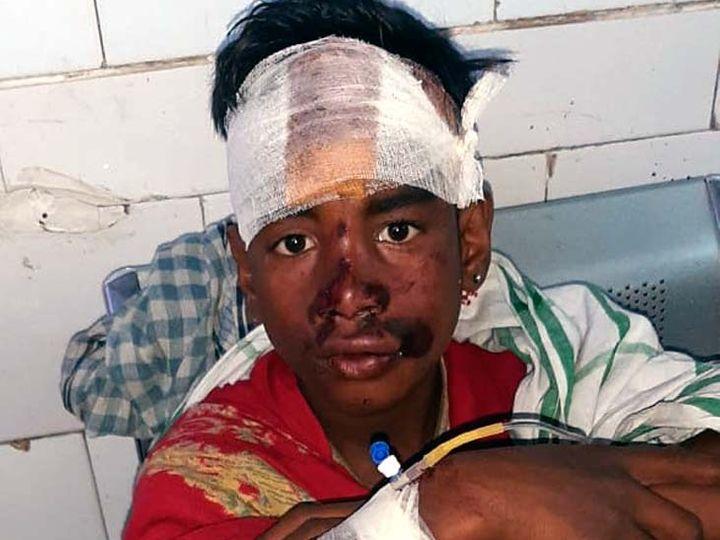 नाबालिग के सिर में गंभीर चोट आई है। - Dainik Bhaskar