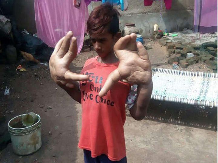 10 वर्षांचा कलीम विचित्र जनुकीय आजाराने ग्रस्त आहे. - Divya Marathi