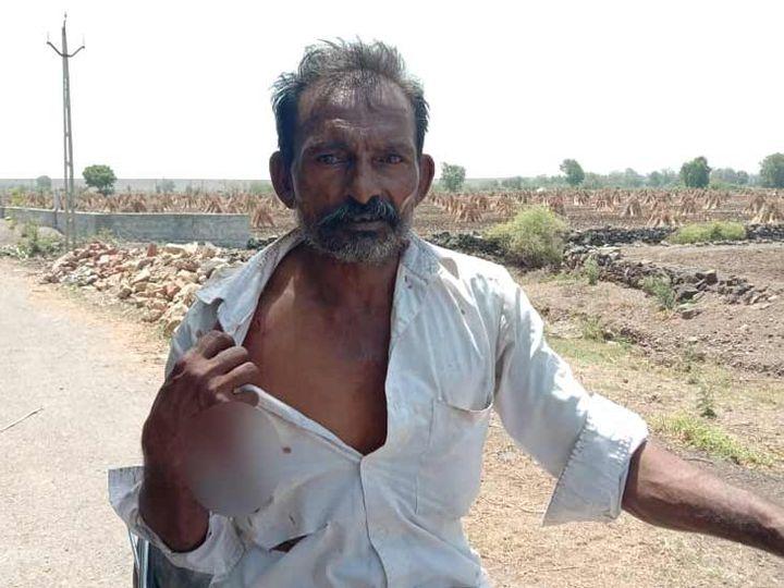 દીપડાના હુમલા ઘાયલ થયેલો ખેડૂત - Divya Bhaskar