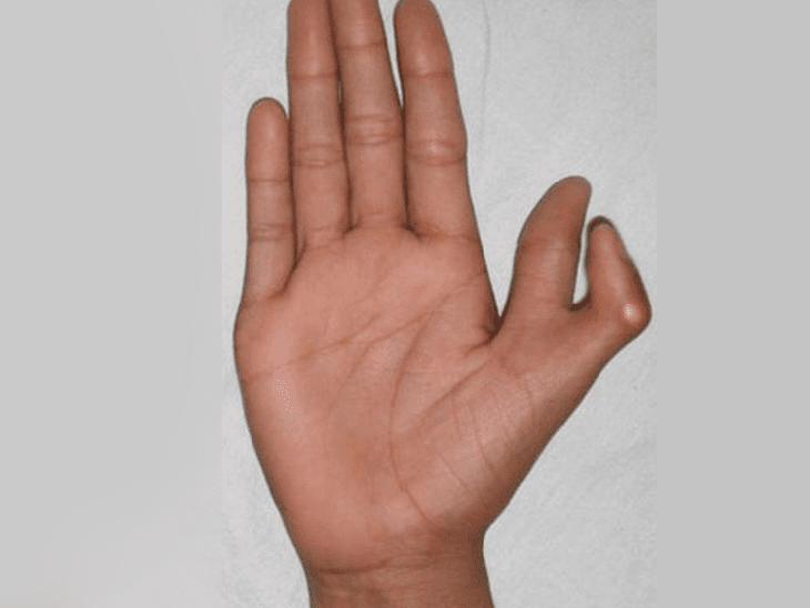 6 उंगलियों वाले लोग होते हैं बुद्धिमान और सौभाग्यशाली, एक रिसर्च के अनुसार तेजी से काम करता है इनका दिमाग  - Dainik Bhaskar