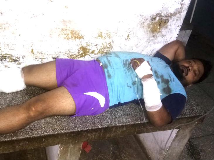 घायल बदमाश। - Dainik Bhaskar